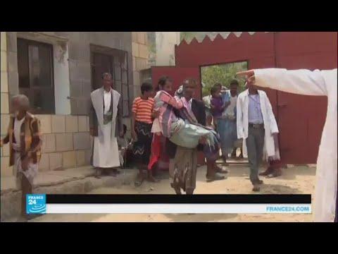 اليمنيون يستخدمون الأشجار لتعليق المحاليل الطبية  - 17:22-2017 / 8 / 10