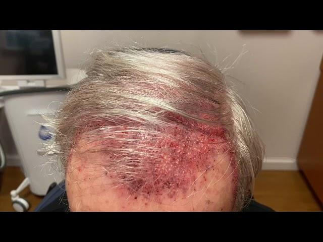 Dallas Hair Transplant Recovery Testimonial