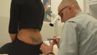Uklanjanje tetovaže laserima thumbnail