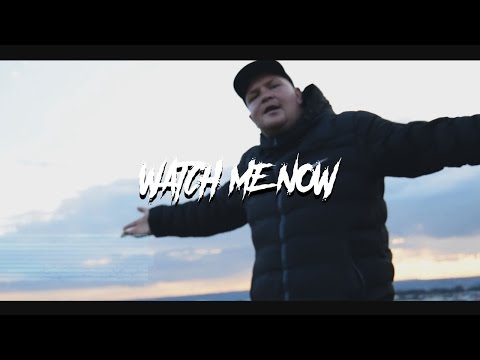 KEMPY - WATCH ME NOW (Official Video)