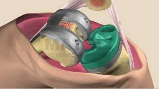 видео операция по замене сустава