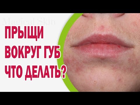Что делать, если появились прыщи вокруг губ
