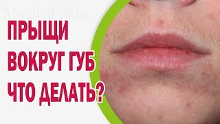 Зубная паста от герпеса на губах: можно ли мазать