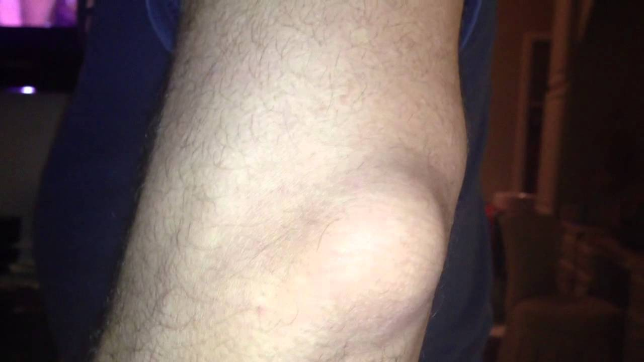 elbow gout