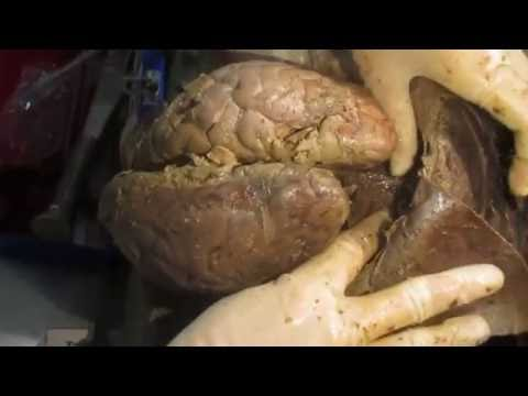 Removal of Brain from Cranium ll JNMC AMU  ll  HD 720p
