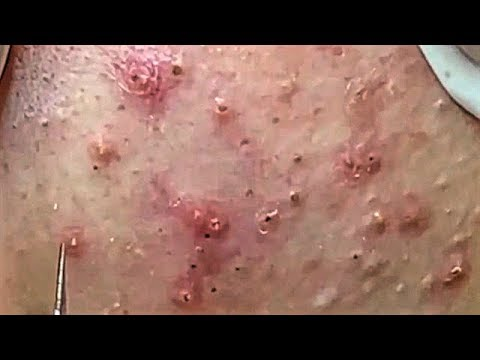 Satisfying Video Acne, Blackheads Removal Skin Care and Relaxing Sleep Music #246