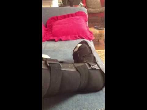 Airboot- Non-displaced Fibula fracture