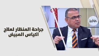 أ. د. عصام لطايفه - جراحة المنظار لعلاج اكياس المبيض