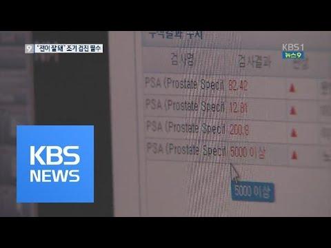 한국인 전립선암 '공격적'…조기 검진 필요 / KBS뉴스(News)