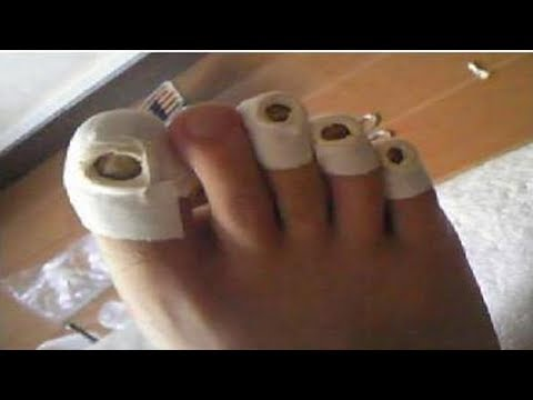 ★Особенности применения уксуса для лечения грибка ногтей. Рецепты для лечения онихомикоза.