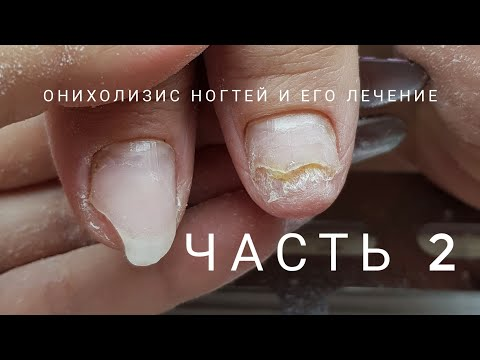 Onycholysis part 2, how to cure onycholysis. What is onycholysis. Problematic nails.