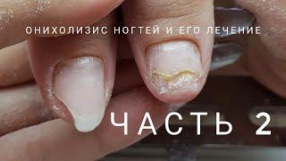 Oнихолизис часть 2, как вылечить онихолизис. Что такое онихолизис. Проблемные ногти.