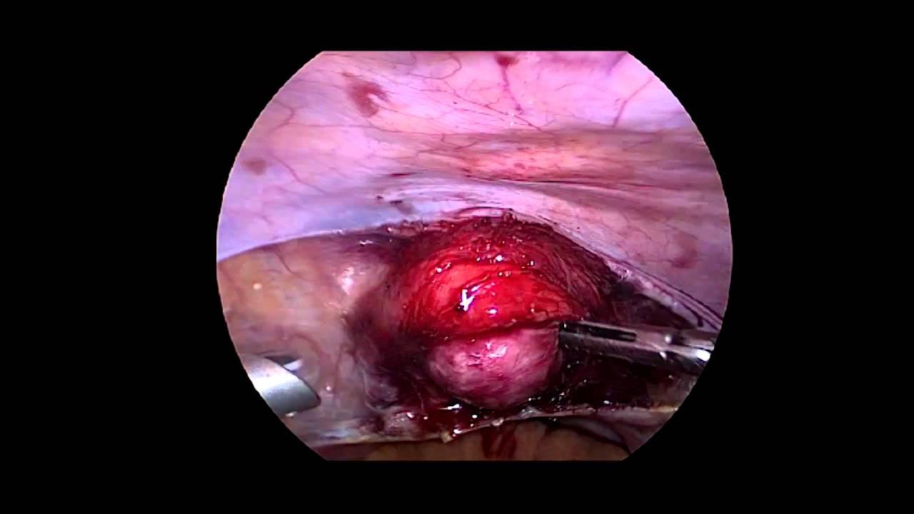 Laparoscopic Vaginoplasty: Davydov's procedure - YouTube