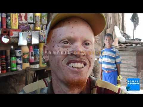 Yusuf Gadudow's Story a Somali Albino - Mogadishu, Somalia
