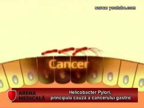 Material despre Helicobacter pylori (AM 13 februarie)