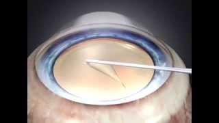 Операция по замене хрусталика глаза при катаракте