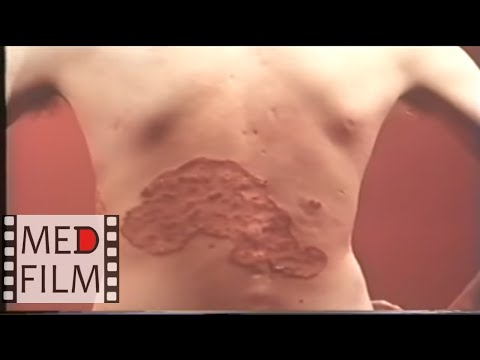 ДЕРМАТОМИКОЗЫ, грибковые заболевания © ringworm