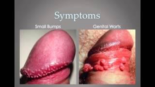 HPV PSA in Men