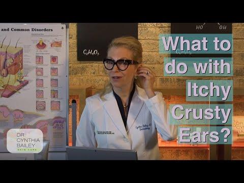 Got Itchy, Crusty Ears? (Yuck!) - Dermatologist's Tips [2019]