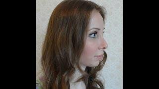 Коррекция носика (повторная ринопластика)(В 2013 году я выиграла бесплатную пластическую операцию по коррекции формы носа на проекте Оморфия, мне прове..., 2014-05-16T19:53:52.000Z)