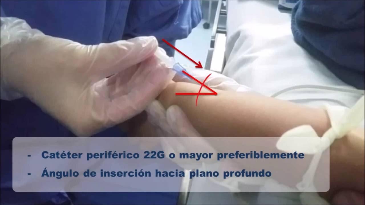 Canalización Vena Cefálica en Niños - YouTube