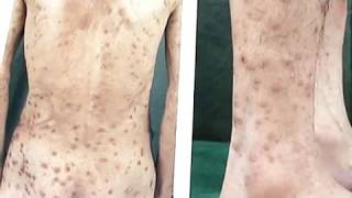 神戸・三宮トアロードクリニック 漢方内科・皮膚科・アレルギー科 2016年12月11日