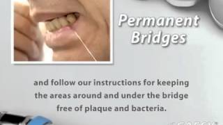 Post op Permanent Bridges Thumbnail