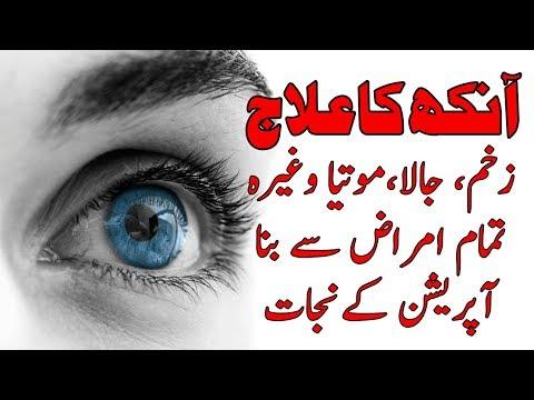 motia : kala motia : aankh ka motiya ka ilaj in urdu with Dr Khurram:pasand aapki