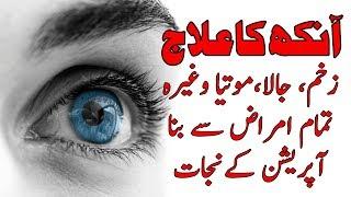 Aankhon ky motiya ka ilaj beghair opperation kay in urdu with Dr Khuram : pasand aapki