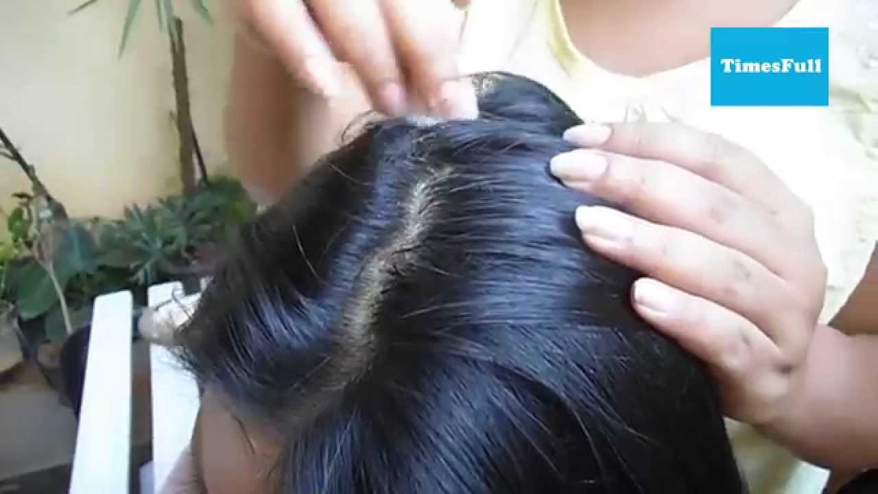 How Does Onion Juice Helps For Fast Hair Growth? - YouTube