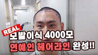 반삭하고 한땀한땀 4000모 모발이식 4시간만에 끝!!…