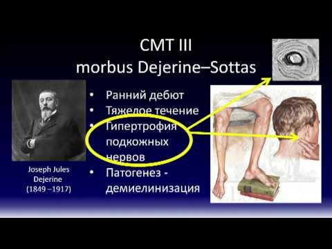 что такое полинейропатия