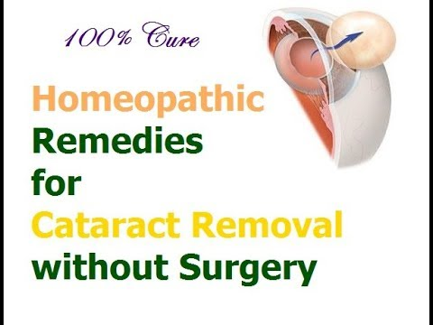 Natural Cataract Cure with Homeopathic Remedies