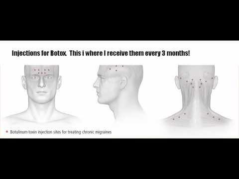 Botox Injections!!!!!