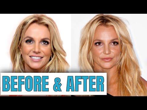 Britney Spears: Plastic Surgery (2020)