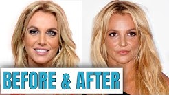 Britney Spears: Plastic Surgery (2020)