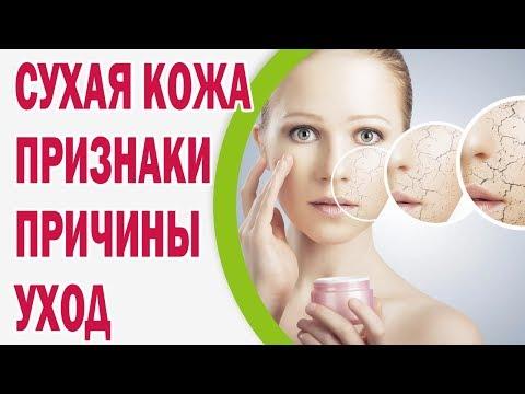 Сухая кожа: признаки, причины, рекомендации по уходу