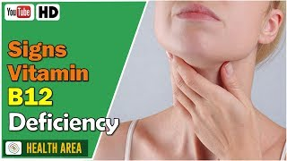 9 Signs and Symptoms of Vitamin B12 Deficiency