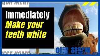 이를 하얗게. 변색된 치아를 하얗게  바꿔준다 Imme…