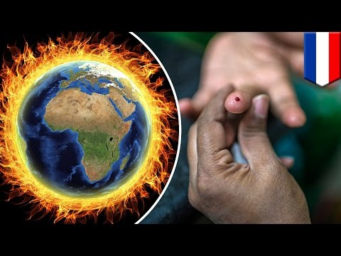 Climate change: Rising diabetes cases may be linked to global warming - TomoNews