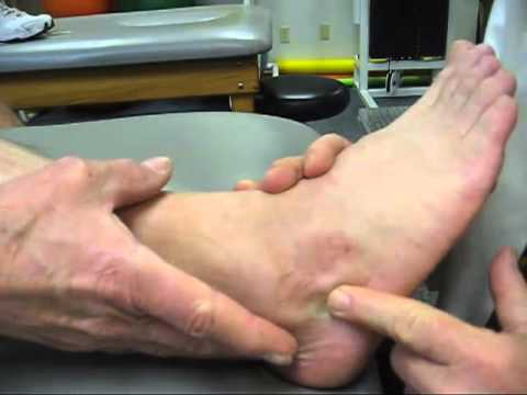 Part 2 - Calcaneus - Heel fracture (March 2012)