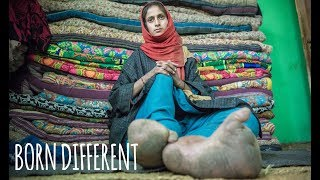 The Woman With The Giant Feet | BORN DIFFERENT