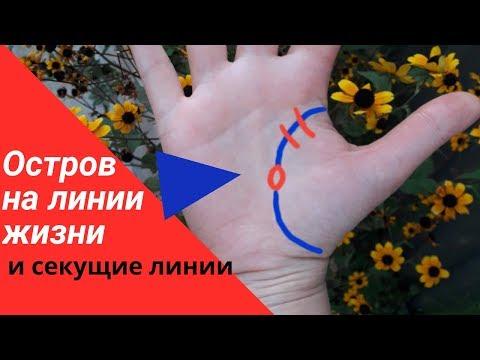 ОСТРОВ на линии жизни//секущая ЧЕРТА на линии жизни// хиромантия  знаки болезней на руке