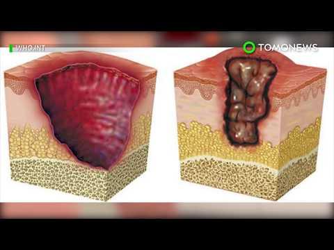 Flesh-eating infections on rise in Australia: Buruli ulcer - TomoNews