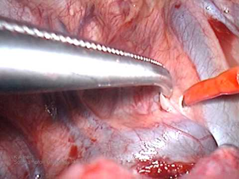 Video assisted thoracoscopy lobectomy recovery