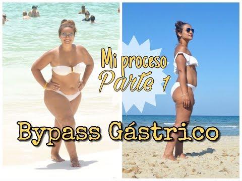 Bypass gastrico SOTECMA | Doovi