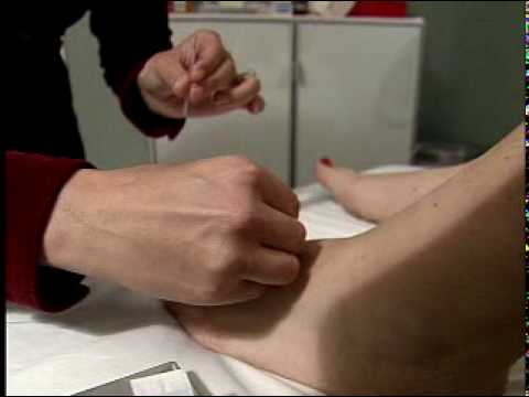 Duke study: Acupuncture offers headache relief