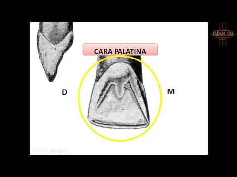incisivo central superior anatomía from YouTube · Duration:  24 minutes 56 seconds