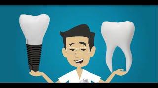 Видео на заказ. Ролик для стоматологии. Имплантация зубов(Желаете заказать видео для своего бизнеса? Анимационное видео, продающее видео, объясняющее видео, видеопр..., 2015-10-15T19:56:48.000Z)