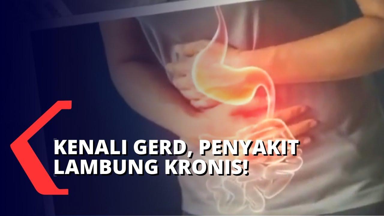 Download Penyakit Asam Lambung atau Gerd Meningkat di Indonesia, Apakah Kamu Salah Satunya?